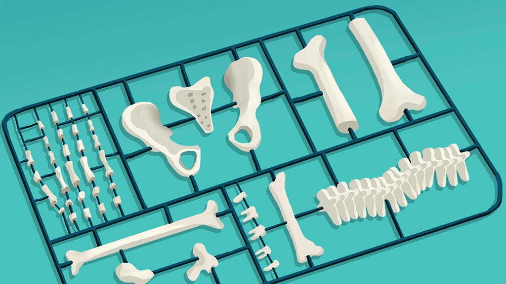 The Economist - 3D printing implants - Alexander Glandien